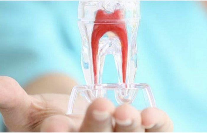 endodonzia_dentista fiorenzuola