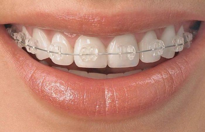 ortodonzia_dentista_fiorenzuola