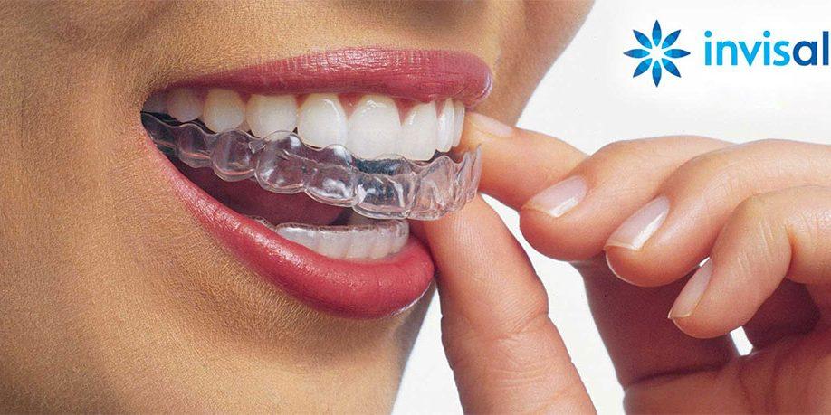 Ortodonzia tradizionale ed estetica in ceramica e (quasi) invisibile con invisalign!